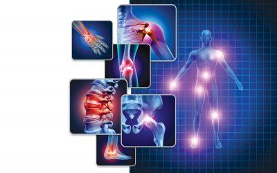Fibromyalgia and Neuroinflammation